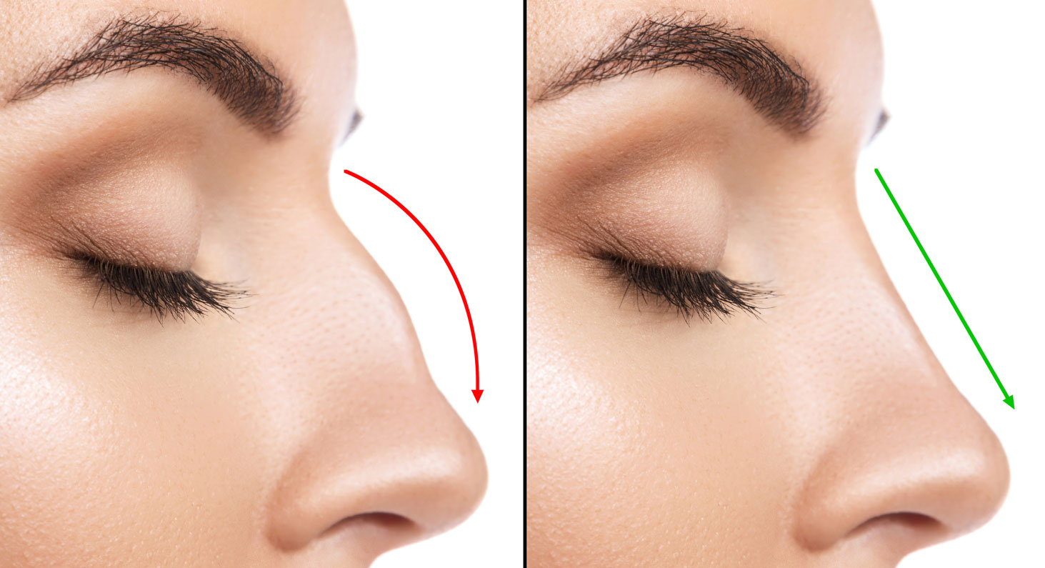 Rhinoplasty Without Surgery
